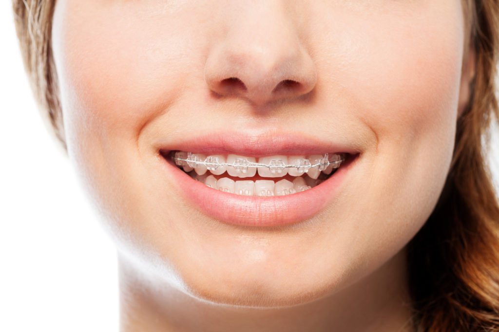 Closeup image of 6 month braces which are clear and an alternative to traditional metal braces.